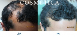 FUE Hair Transplant  for scars